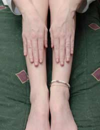 Restless Legs Syndrome Rls Causes